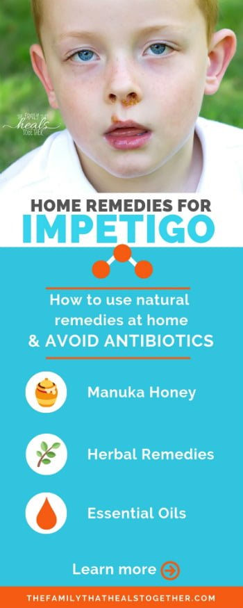 Home Remedies For Impetigo That Really Work | The Family That Heals Together