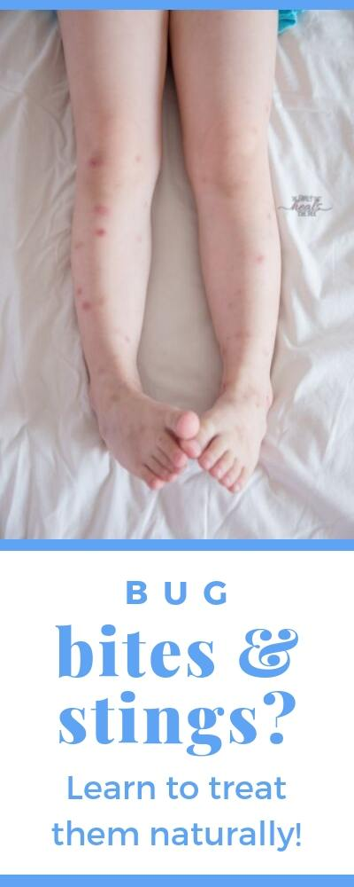 Insect Bite Remedy: Natural ways to treat bites and stings | The Family That Heals Together